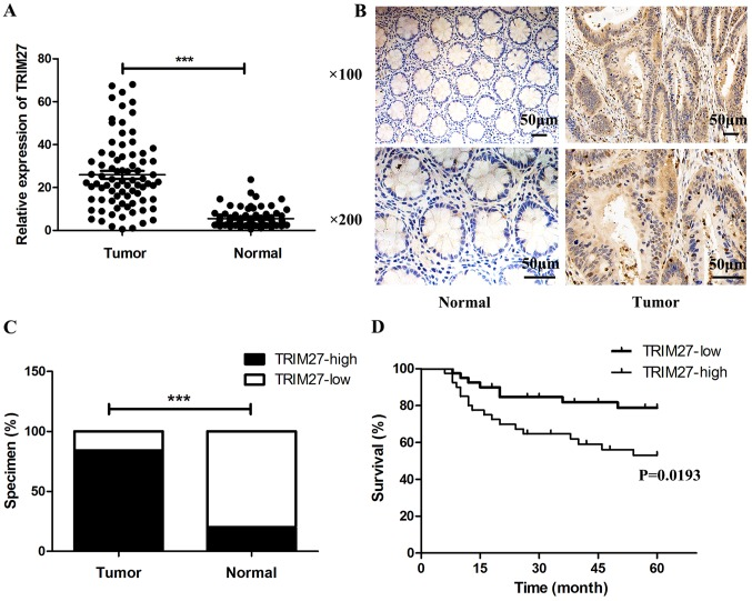 Expression of TRIM27 is upregulated in human CRC tissues and predicts poor prognosis. (A) mRNA expression levels of TRIM27 in CRC and normal tissues (n=80) were detected by reverse transcription-quantitative polymerase chain reaction. mRNA levels of TRIM27 were normalized to GAPDH . (B) Immunohistochemical results of TRIM27 in CRC tissues and normal adjacent tissues. (C) Percentage of specimens exhibiting strong or weak expression of TRIM27 in immunohistochemistry. (D) Kaplan-Meier survival analysis of 80 patients with CRC based on the expression level of TRIM27. *** P