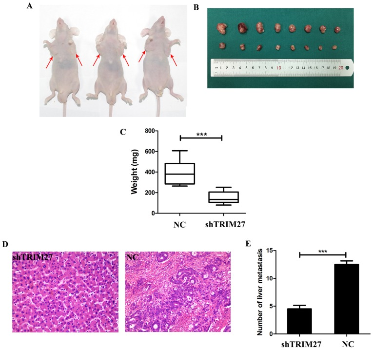 Knockdown of TRIM27 inhibits the proliferation and metastasis of colorectal cancer cells in vivo . (A) Nude mice 4 weeks following tumor implantation in the shTRIM27 group (left armpit) and control group (right armpit). (B) Representative images of isolated tumors in the control group (first row) and shTRIM27-treated group (second row). (C) Average weights of the isolated tumors in the two groups. (D) Representative images of hematoxylin and eosin staining results of the liver tissues from mice in the shTRIM27-treated group and control group. Magnification, ×200. (E) Comparative analysis of the number of liver metastases in mice. ** P