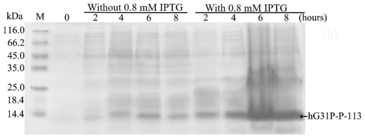 Sodium dodecyl sulfate (SDS)–polyacrylamide gel electrophoresis (PAGE) analysis of recombinant hG31P-P-113 expressed in E. coli <t>BL21.</t>