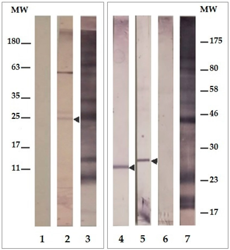 Western blot recognition of Rv3623 in M. tuberculosis . Lane 1: pre-immune sera. Lane 2: post-third immunisation of the 16660/16665/BSA mixture against lysed Mtb H37Rv. Lanes 3 and 7: recognition of lysed Mtb H37Rv by hyper-immune sera control (obtained by inoculating mice with Mtb H37Rv sonicate). Identification of membrane (lane 4), wall (lane 5) and cytosol proteins (lane 6) lysed from H37Rv by sera from mice immunized with the 16660/16665/BSA mixture (25 µg antigen was added to each lane).