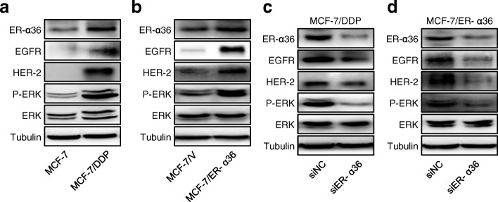 Increased activation of ER-α36-mediated nongenomic estrogen signaling is responsible for cisplatin resistance. a , b MCF-7 and MCF-7/DDP cells ( a ) or MCF-7/V and MCF-7/ER-α36 cells ( b ) were harvested and the protein levels of ER-α36, EGFR, HER-2, total ERK (ERK) and phosphorylated ERK (P-ERK) were detected using western blot. c , d MCF-7/DDP ( c ) and MCF-7/ER-α36 ( d ) cells were transfected with siER-α36 and negative control siRNA (siNC) for 48 h. Then the cells were collected and the levels of ER-α36, EGFR, HER-2, P-ERK, ERK were analyzed by western blot