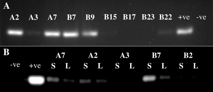 Detection of RLEP sequence by PCR in armadillo tissues. A) Analysis of PCR RLEP product from spleen samples from nine different armadillos. B) Analysis of RLEP from paired samples of liver (L) and spleen (S) from five different armadillos. The signal from positive samples is consistently stronger in the spleen for each individual. The positive control (+ve) reaction included purified M . leprae DNA, 2 ng, while the negative control (-ve) lacked DNA template.