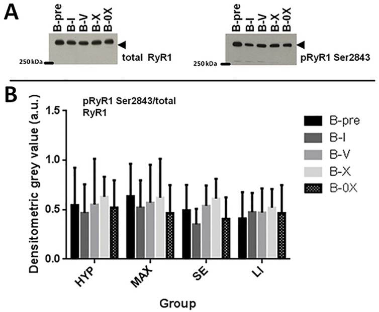 Western blotting analysis of <t>RyR1</t> phosphorylation at serine 2843 ( p RyR1 Ser2843 ) in human skeletal muscle tissue. A : Representative western blots of p RyR1 Ser2843 (left) and total RyR1 (right). Tissue was analyzed from muscle biopsies taken prior to exercise (B-pre), 25 min after completion of one set (B-I), five (B-V) and ten sets (B-X) from vastus lateralis of the loaded leg as well as 25–30 min after X set exercise from vastus lateralis of the non-exercised leg (B-0X). Total RyR1 was used as loading control. B : Bar graph of p RyR1 Ser2843 / total RyR1. a.u. = arbitrary units. Error bars are 1*SD of the mean.