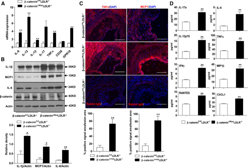 Ablation of myeloid β-catenin increases macrophage and systemic inflammation in β-catenin ΔMye LDLR −/− mice. A , Quantitative real-time polymerase chain reaction (QPCR) analysis of proinflammatory cytokine expression in peritoneal macrophages (PM) of β-catenin F/F LDLR −/− and β-catenin ΔMye LDLR −/− mice (** P
