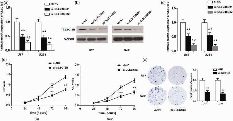 Growth and colony-formation abilities of GBM cells were inhibited by CLEC18B knockdown. (a to c) Transfection efficacy of CLEC18B si-RNA in U87 and U251 cells was analyzed by qPCR and Western blot assay, respectively. (d) Assessing the effects of CLEC18B downregulation on the proliferation ability of U87 and U251 cells using CCK-8 assay. (e) Evaluating the effects of CLEC18B knockdown on the colony-formation ability of U87 and U251 cells. All values are shown as mean ± SD, ** p