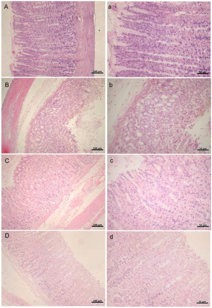 H E staining of rat gastric mucosa in ethanol-induced gastric ulcers (magnification at 20× and 40×). ( A , a ) Vehicle control; ( B , b ) ulcer control; ( C , c ) omeprazole (40 mg/kg); ( D , d ) ExPhy (400 mg/kg).