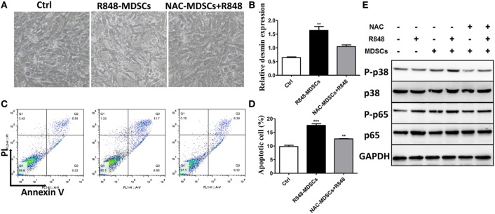 Myeloid-derived suppressor cells (MDSCs) induce podocyte injury by reactive oxygen species (ROS). BM-derived MDSCs were pretreated with ROS inhibitors N -acetyl- l -cysteine (5 mM) or inducible nitric oxide synthase inhibitors L-NMMA (0.5 mM) for 1 h, and co-cultured with mouse podocytes at ratio of 1:1 using transwell co-culture systems. (A) Representative light photomicrographs of podocytes after 48 h co-culture with MDSCs. (B) Expression of desmin in podocytes was measured by quantitative real-time RT-PCR after 24 h co-culture with MDSCs. (C,D) Podocyte apoptosis was assessed with annexin V by flow cytometry after 48 h co-culture with MDSCs (C) and the statistic results of podocyte apoptosis (D) . Data represent the mean scores ± SEM. (E) The protein levels of p-p38, p-38, p-p65, and p-65 were assessed by western blot and normalized to GAPDH. * P ≤ 0.05, ** P ≤ 0.01, *** P ≤ 0.001.