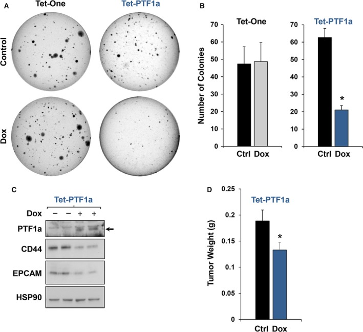 PTF 1a expression decreases soft agar colony and orthotopic pancreatic cancer tumor growth. (A,B) Soft agar colony formation assay of Tet‐One and Tet‐ PTF 1a cells ± Dox. (C) Immunoblot analysis of CD 44 and EPCAM from soft agar colonies of Tet‐ PTF 1a cells ± Dox. CD 44 and EPCAM show marked reductions in the PTF 1a expressing colonies. (D) Orthotopic xenograft assays testing Panc‐1 Tet‐ PTF 1a tumor growth in mice subjected to ± Dox chow. * P ≤ 0.05.