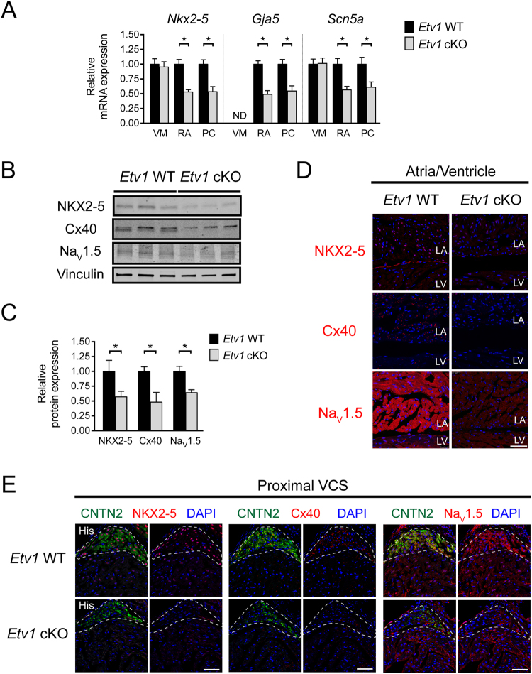 Cardiomyocyte deletion of ETV1 resulted in decreased expression of fast conduction genes in atrial and His-Purkinje system (HPS) myocytes. ( A ) Quantitative RT-PCR of fast conduction gene RNA levels (normalized to Gapdh ) comparing 10–12-week-old Etv1 WT ( Etv1 flox/flox ) and Etv1 cKO ( Etv1 flox/flox , Myh6-Cre ) FACS-purified ventricular, atrial, and Purkinje myocytes. Relative Nkx2–5 , Gja5 , and Scn5a expression displayed versus control, Etv1 WT (n = 4). ( B ) Immunoblot assessment of Etv1 WT and Etv1 cKO atrial tissue lysates detecting NKX2–5, Cx40, Na V 1.5, and Vinculin (loading control). ( C ) Protein level densitometric quantification (normalized to vinculin), displayed relative to Etv1 WT (n = 5). ( D ) Immunofluorescence evaluation of NKX2–5, Cx40, and Na V 1.5 expression in 10-week-old Etv1 WT and Etv1 cKO atria/ventricular sections. ( E ) Immunofluorescence evaluation of NKX2–5, Cx40, and Na V 1.5 expression in 10-week-old Etv1 WT and Etv1 cKO HPS sections. Positive CNTN2 expression identified HPS cells. Nuclei were identified by DAPI (blue). LA, left atria; LV, left ventricle. Data represent mean ± SEM. *P