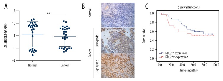 HSDL2 expression in ovarian cancer tissue samples. ( A ) qPCR showed that the levels of HSDL2 mRNA in cancer tissues were significantly different from those in normal tissues ( P