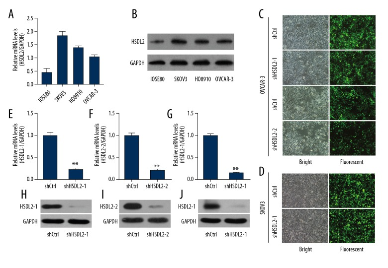 Efficient HSDL2 knockdown at the mRNA and protein levels in the human ovarian cancer OVCAR-3 cells using lentiviral-mediated RNAi. ( A, B ) HSDL2 mRNA ( A ) and protein ( B ) expression in human ovarian cancer cell lines SKOV3, HO8910, and OVCAR-3 and human normal ovarian epithelial cell line IOSE80. ( C, D ) Representative images of GFP expression in OVCAR-3 cells ( C ) and SKOV3 ( D ) after infection of shCtrl, shHSDL2-1, or shHSDL2-2 lentiviruses. ( E–G ) HSDL2 mRNA expression was analyzed by qPCR and was reduced by shHSDL2-1 or shHSDL2-2 lentiviruses compared to the shCtrl group, respectively. GAPDH was used as an internal control and the data represent the mean ±SD of 3 independent experiments. (** P