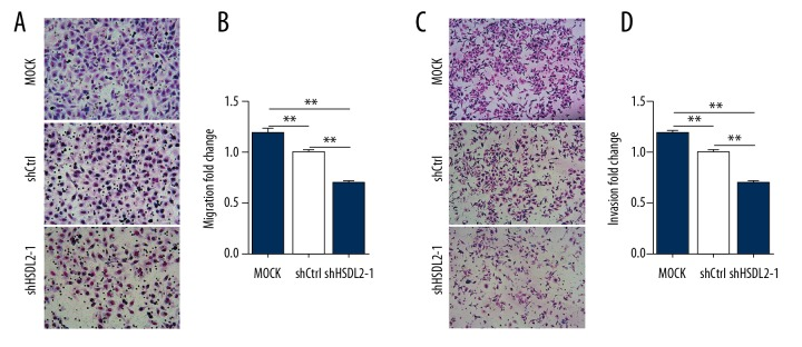 HSDL2 knockdown inhibited the migration and invasion of human ovarian cancer OVCAR-3 cells. ( A, C ) Representative Transwell migration ( A ) and invasion ( C ) assay of OVCAR-3 cells transfected with shHSDL2-1 lentivirus. ( B, D ) Quantification of migration ( B ) and invasion ( D ) abilities of OVCAR-3 transfected with shHSDL2-1 lentivirus. (** P