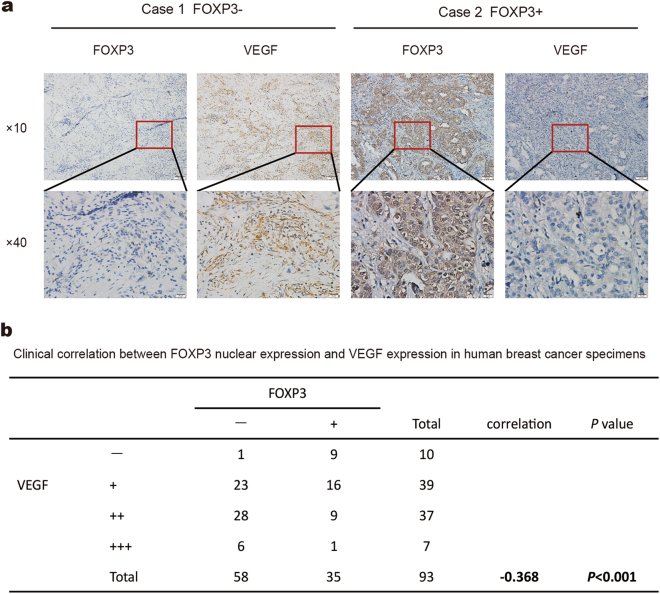 Inverse correlation between FOXP3 and VEGF expression in human breast cancer samples. a Representative immunohistochemical images of nuclear FOXP3 and VEGF expression in breast cancer specimens. Scale bar, 100 μm (×10) and 20 μm (×40). b A significant negative correlation between nuclear FOXP3 and VEGF expression was found in the breast cancer specimens. b Spearman test