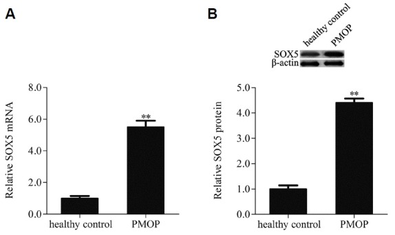 SOX5 was up-regulated in hMSCs isolated from bone marrow samples of patients with postmenopausal osteoporosis (PMOP) and healthy premenopausal women (healthy control), the mRNA and protein expression levels of SOX5 were examined by qRT-PCR (A) and Western blotting (B). Data are expressed as the mean ± SD, n=3. **P