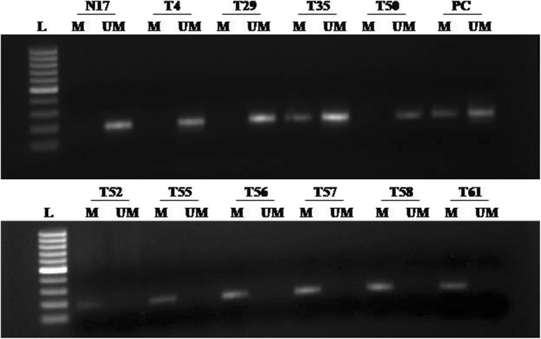 Methylation-specific PCR analysis of YAP gene in breast cancer patients: L 1kb DNA ladder, M methylated YAP promoter (PCR product size-187 bp), UM unmethylated YAP promoter (PCR product size-188 bp), PC positive control for methylated and unmethylated alleles (Completely methylated and unmethylated DNA controls, respectively), N normal breast sample, and T breast tumor sample