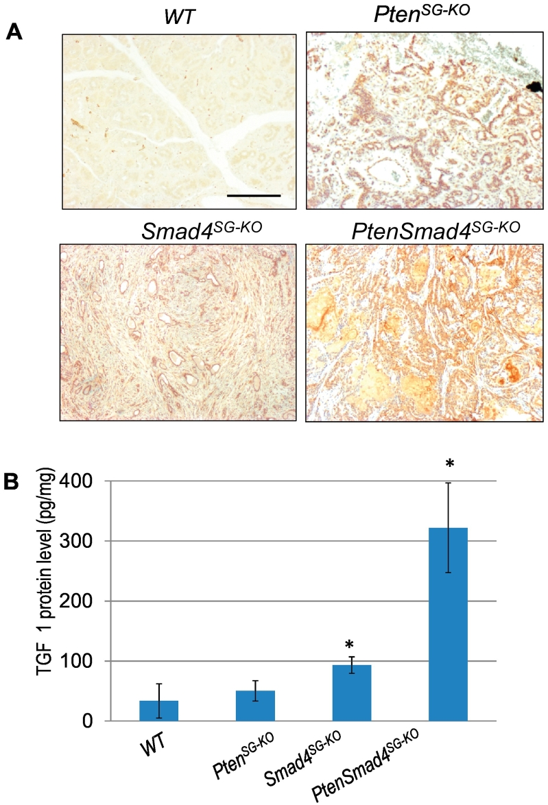 Activation of mTOR and increased TGFβ1 ligand in murine SGTs. (A) Immunohistochemistry staining of p-mTOR (brown) in SPAs developed from Pten SG-KO mice ( n = 7) or <t>Smad4</t> SG-KO mice ( n = 5), and SACCs developed from Pten.Smad4 SG-KO mice ( n = 6). WT: wild-type. Scale bar: 50 μm. (B) ELISA measurement of TGFβ1 levels in SPAs developed from Pten SG-KO mice or Smad4 SG-KO mice, and SACCs developed from Pten.Smad4 SG-KO mice. n = 3 of each group. * P