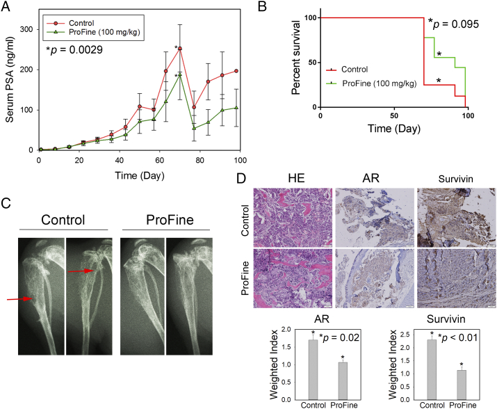 In vivo effect of oral ProFine on the intratibial growth of C4-2-Luc tumors in athymic nude mice. (A) Serum PSA levels in C4-2-Luc tumor-bearing mice treated with ProFine (100 mg/kg) or vehicle control. (B) Log-rank survival curve of C4-2-Luc tumor-bearing animals treated with ProFine or vehicle control. (C) X-ray radiography of C4-2-Luc tumor-bearing tibias of mice treated with ProFine or vehicle control, collected at end points. Red arrows: osteolytic lesions. (D) Upper: H E and IHC staining of AR and survivin expression in C4-2-Luc bone tumors. Scale bar: 100 μm. Lower: Quantitation of IHC expression of AR and survivin in bone tumors. P values were calculated using Student's t test.