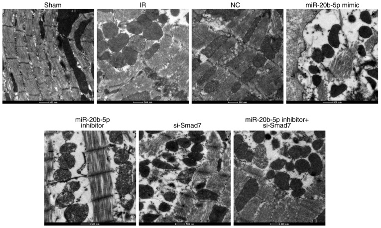 Ultrastructure of cardiomyocytes in rats in each group (n=3). Images at magnification, ×3,000. miR-20b-5p, microRNA-20b-5p; Smad7, small mothers against decapentaplegic homolog 7; si-, small interfering RNA; NC, negative control; IR, ischemia-reperfusion.