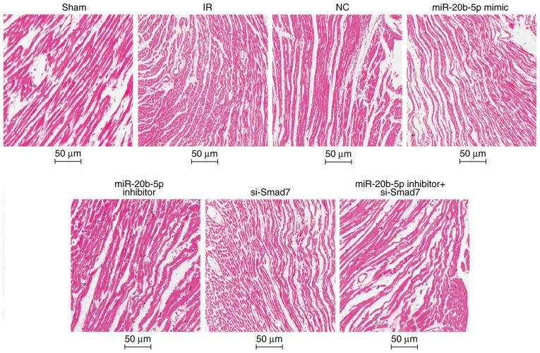 Hematoxylin and eosin staining of the myocardium in rats in each group (n=3). Images at magnification, ×200. miR-20b-5p, microRNA-20b-5p; Smad7, small mothers against decapentaplegic homolog 7; si-, small interfering RNA; NC, negative control; IR, ischemia-reperfusion.