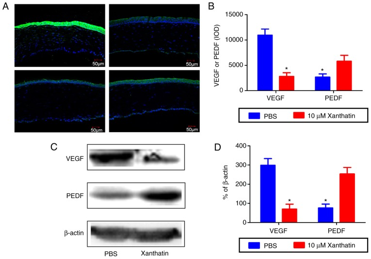 Protein expression of <t>VEGF</t> and <t>PEDF</t> in the xanthatin group and the control group. (A) Representative fluorescence microscopy images showing expression of VEGF and PEDF and their localization in the alkali-burned rat corneas of the xanthatin treatment group and the control group on day 14. (B) Quantification of expression levels of VEGF and PEDF in the xanthatin treatment group and the control group was performed using ImageJ software. (C) Western blot bands of protein expression of VEGF and PEDF in the alkali-burned rat corneas of the xanthatin treatment group and the control group on day 14 are shown. (D) Histograms representing the relative levels of VEGF and PEDF, respectively, in the xanthatin treatment group and the control group. Data are presented as the mean ± standard deviation from three independent experiments. * P