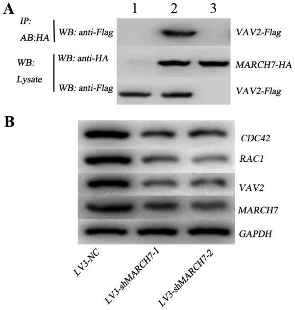 MARCH7 regulated VAV2-RAC1-CDC42 pathway. (A) The interaction between MARCH7 and VAV2 was identified by Co-IP assay. Cells were co-transfected with Flag-VAV2 and HA-MARCH7, and control group was established simultaneously, cells were then harvested 24 h later. Anti-HA antibodies were used to pull the interaction protein. Then, they were detected by anti-Flag antibodies. Results showed that Flag bands could not be detected in the cells transfected with Flag-VAV2 (lane 1) or HA-MARCH7 (lane 3) only. However, it can be detected in cells co-transfected with both Flag-VAV2 and HA-MARCH7 (lane 2), which indicated that there existed interaction between MARCH7 and VAV2 in vivo . (B) The expression of VAV2, RAC1 and CDC42 were determined by western blot analysis. The VAV2, RAC1 and CDC42 expression in cells infected with LV3-shMARCH7-1 or LV3-shMARCH7-2 was significantly lower than in control cells. LV3-shMARCH7-1, lentiviral vector expressing shRNA targeting MARCH7; LV, lentiviral vector.