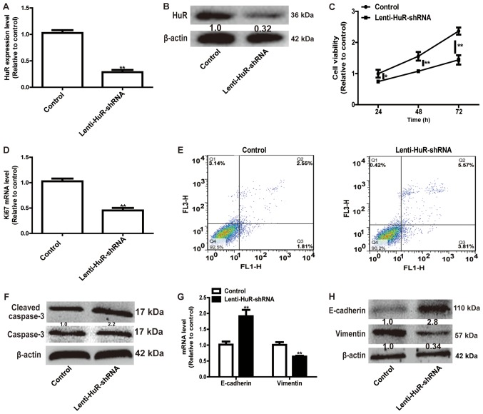Knockdown of <t>HuR</t> enhances OS cell apoptosis, and inhibits cell viability and the EMT process. Knockdown efficiency of <t>Lenti-HuR-shRNA</t> was validated via (A) RT-qPCR and (B) western blot analysis. (C) Cells with or without HuR knockdown were subjected to an MTT assay to examine cell viability. (D) The mRNA expression level of proliferation marker ki67 was measured in the cells depicted in Fig. 2C . (E) Cell apoptosis assay was performed to detect the apoptotic rate of the cells depicted in Fig. 2C . (F) The protein expression level of apoptotic executor Cleaved caspase-3 was tested in cells depicted in Fig. 2C . EMT markers (E-cadherin and Vimentin) (G) mRNA and (H) protein expression levels were measured in cells depicted in Fig. 2C . *P