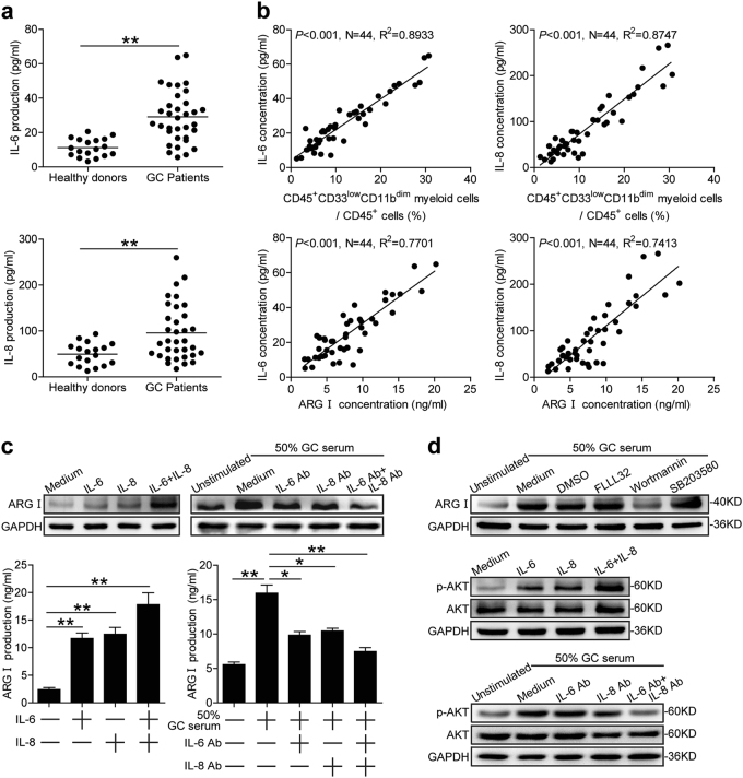 IL-6 and IL-8 induces CD45 + CD33 low CD11b dim myeloid cell production of arginase I via PI3K-AKT signaling. a Serum IL-6 and IL-8 concentration levels in GC patients compared to healthy donors. b Correlations between the proportions of peripheral blood CD45 + CD33 low CD11b dim myeloid cells or serum arginase I concentration and IL-6 or IL-8 serum concentrations in GC patients. c Arginase I expression and production in CD33 low CD11b dim myeloid cells exposed to recombinant IL-6 and/or IL-8, or 50% GC patient serum in the presence or absence of IL-6 and/or IL-8 neutralizing abs as analyzed by western blot and ELISA, respectively. d Arginase I expression in CD45 + CD33 low CD11b dim myeloid cells exposed to 50% GC patient serum in the presence or absence of FLLL32 (STAT3 phosphorylation inhibitor), Wortmannin (PI3K inhibitor), or SB203580 (MAPK inhibitor; top panel). AKT and p-AKT expression levels in CD45 + CD33 low CD11b dim myeloid cells exposed to IL-6 and/or IL-8 (middle panel), or 50% GC patient serum in the presence or absence of IL-6 and/or IL-8 neutralizing abs (bottom panels) as analyzed by western blot. * p