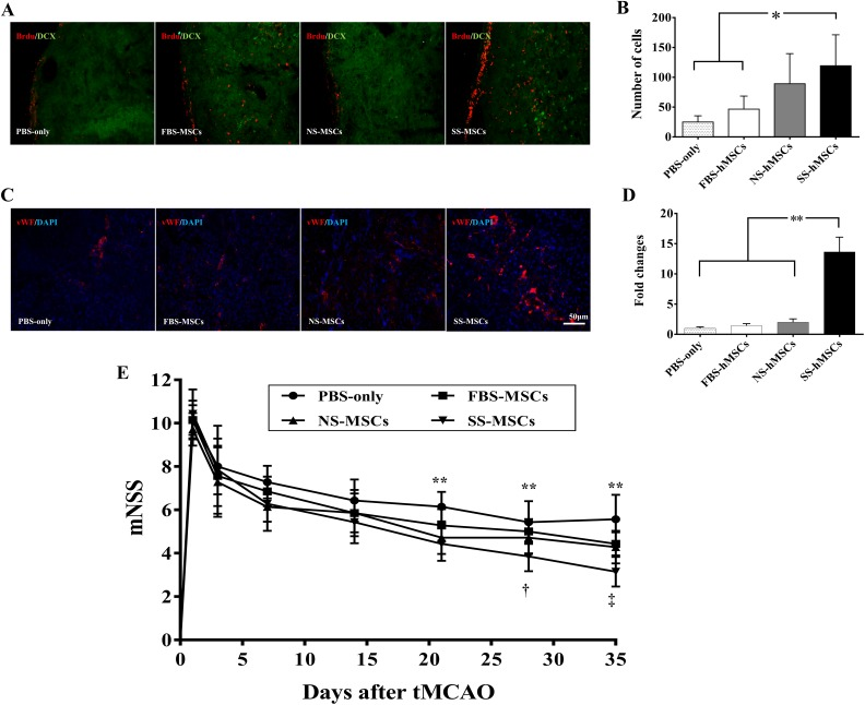 Neurogenesis and angiogenesis effects of human mesenchymal stem cells (hMSCs) in a stroke rat model. (A) Representative images of immunofluorescence staining with <t>anti-BrdU</t> <t>(red)/anti-doublecortin</t> (DCX; green) for analysis of neurogenesis. (B) Quantitative analysis of neurogenesis expressed as the proliferating cell number with anti-BrdU/anti-DCX positive cells in the subventricular zone. (C) Representative images of immunofluorescence staining with anti-vWF (red)/4',6-diamidino-2-phenylindole (blue) for analysis of angiogenesis. (D) Quantitative analysis of angiogenesis expressed as the anti–von Willebrand factor positive area in the striatum. The quantitation of stained cells was performed in 6 fields per section. The data are presented as mean + SD (* P