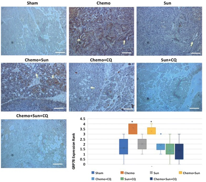 Anti-Grp78 immunohistochemistry showing differential expression of Grp78 in the pancreas of drug treated orthotopic murine model: Treatment with gemcitabine plus paclitaxel (Chemo) or Chemo + sunitinib increases the Grp78 levels in the ductal carcinoma (arrows) and surrounding cells ( p