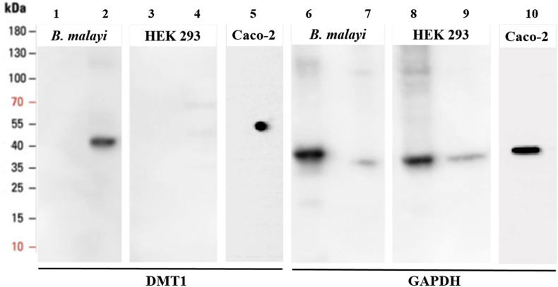 Western blot detection of divalent metal transporter 1 (DMT1) in Brugia malayi adult females. Soluble and membrane protein was extracted from B. malayi adult females (soluble protein lanes 1 and 6; membrane protein lanes 2 and 7) and HEK293 cells (soluble protein lanes 3 and 8; membrane protein lanes 4 and 9). In addition, a whole cell protein lysate was extracted from human Caco-2 cells (lanes 5 and 10). Approximately 20 μg of protein from each extract was subjected to SDS-PAGE followed by Western blot analysis with rabbit <t>polyclonal</t> anti-DMT1 antibody (Abcam, Cat: ab123085) (lanes 1 to 4) and rabbit polyclonal <t>anti-GAPDH</t> antibody (Proteintech, Cat: 10494-1-AP) (lanes 5 to 8).