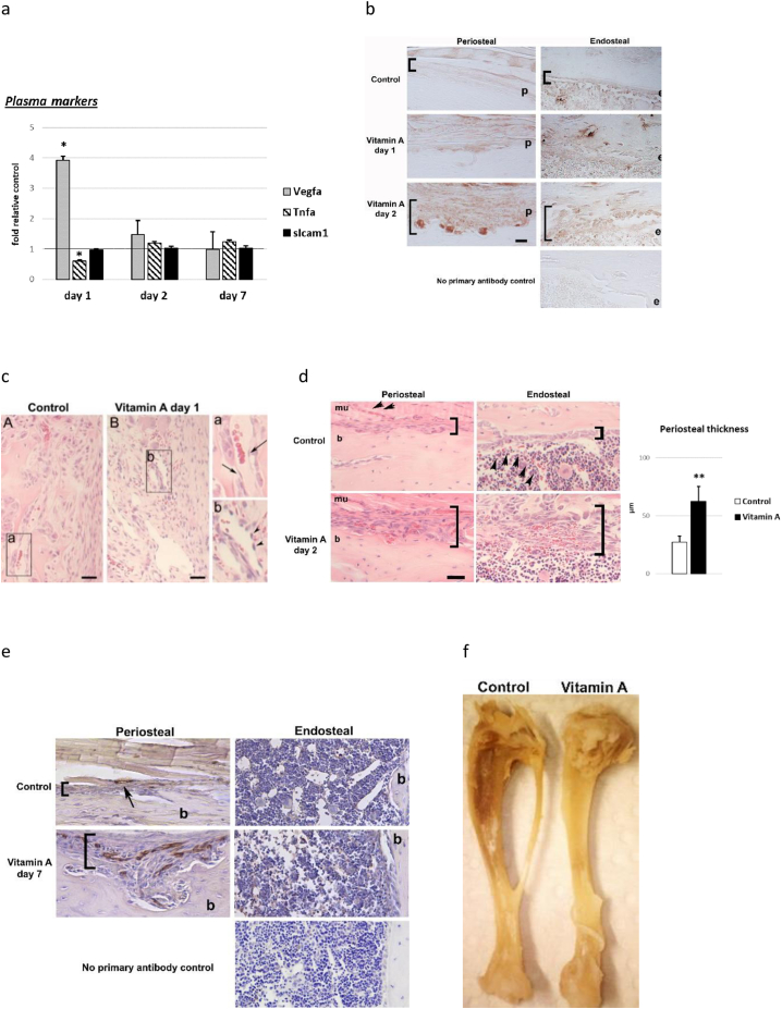 Early pathological features of hypervitaminosis A in young rats. a) Plasma levels of Vegfa, Tnfa and soluble Icam 1 (sIcam1) protein at day 1, 2 and 7 into hypervitaminosis A, determined by ELISA. n = 4–5/group (day 1 and day 2) and n = 9–10/group (day 7). Student's t -test; p