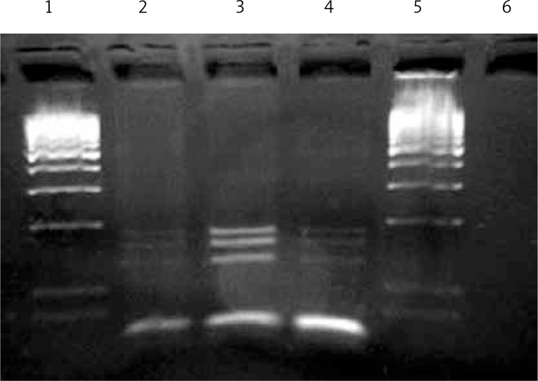 Assessment of GPIbα Kozak polymorphism. Individuals were genotyped by cleavage of PCR products with restriction endonuclease enzyme Psp5II. 1 and 5: 100 bp DNA marker, 2–4: The enzyme cleavage products of TT genotyped individuals (175, 157, 125 bp)