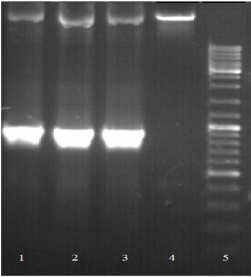 Chromosomal DNA amplification. Agarose gel electrophoresis results illustrated the insertion of truncated α4 integrin ( TITGA4) into the genome of transfected cells. Lane 1-3, amplified 879 bp fragment of transfected cells; lane 4, untransfected cell, and lane 5, marker 1 kb.
