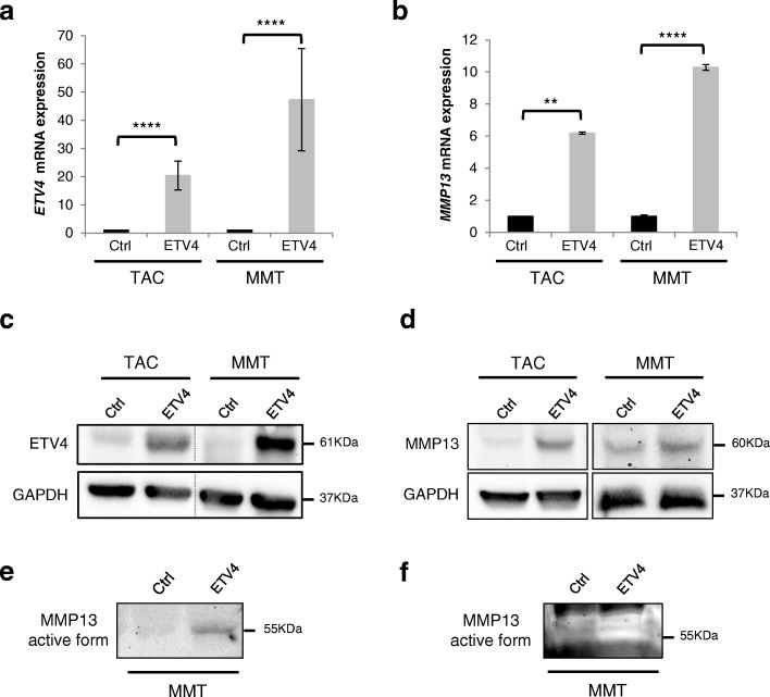 Expression of ETV4 and MMP13 in TAC-Ctrl/ETV4 and MMT-Ctrl/ETV4 cells. a and b Relative ETV4 ( a ) or MMP13 ( b ) mRNA expression in TAC/MMT-Ctrl and TAC/MMT-ETV4-overexpressing cells determined by real-time PCR and normalized to cyclophilin A levels. mRNA expression in TAC/MMT-Ctrl cells was arbitrarily = 1. Error bars indicate SD. **** P ≤ 0.0001; ** P ≤ 0.01. c and d Western blot analysis of ETV4 protein expression (61 kDa) ( c ) or MMP13 protein expression (60 kDa) ( d ) in TAC/MMT-Ctrl and TAC/MMT-ETV4 cells. GAPDH expression served as the loading control. e Western blot analysis of the secreted MMP13 protein expression (55 kDa) from the supernatant of MMT-Ctrl and MMT-ETV4-overexpressing cells. f Zymographic analysis of MMP13 protein activity (55 kDa) in MMT-Ctrl and MMT-ETV4 cells