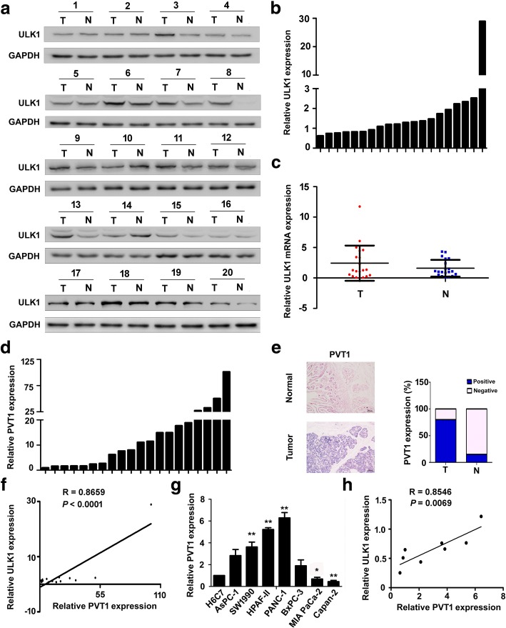 ULK1 protein level parallels to that of PVT1 in a subset of human PDA tissues. a Western blot analysis of the expression of ULK1 protein in PDA tissues ( n = 20) and the corresponding adjacent non-tumor pancreatic specimens (n = 20). GAPDH acted as an endogenous control. T, tumor tissues; N, non-tumor pancreatic tissues; b The quantitation of the western blot results in (a). ULK1 protein expression was up-regulated in 13 PDA tissues compared with the corresponding adjacent non-tumor pancreatic specimens in 20 PDA tissues. The high value of ULK1 protein was defined as fold change > 1 ( n = 13); c The level of ULK1 mRNA in 20 PDA tissues was of no statistical significance compared to that of the corresponding adjacent non-tumor pancreatic specimens by qRT-PCR. Data are presented as the mean ± S.D. (n = 20); d PVT1 expression in PDA tissues from the 20 PDA cases based on qRT-PCR analysis. The high value of PVT1 was defined as fold change > 2 ( n = 15), the rest including down-regulation or no evident difference in expression in PDA tissues compared with PDA expression in the corresponding adjacent non-tumor tissue, was defined as low values ( n = 5); e PVT1 expression in PDA tissues based on ISH analysis and the percent of PVT1-positive samples in different groups; f The expression level of PVT1 mRNA was positively correlated with that of ULK1 protein in 20 PDA tissues. The statistical analysis was performed using Pearson's correlation coefficient ( R = 0.8659, P