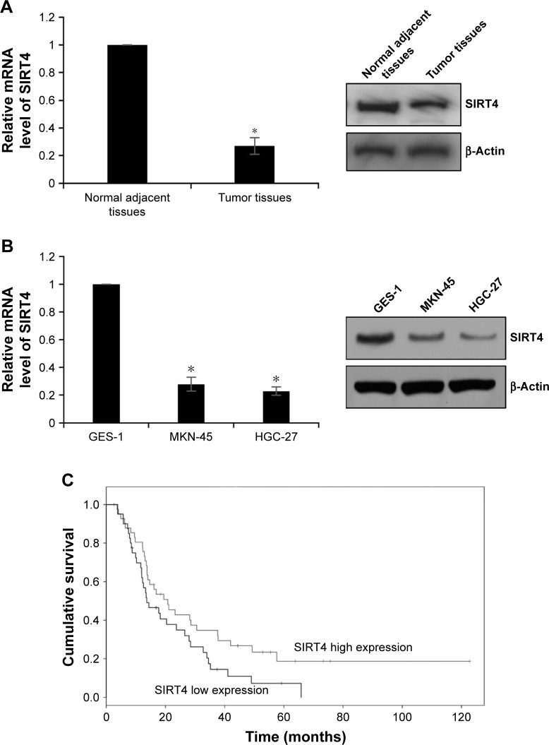 Downregulation of SIRT4 expression correlates with clinicopathological factors and poor prognosis in GC patients. ( A ) The expression of SIRT4 in tumor tissues and adjacent normal tissues was determined by <t>qRT-PCR</t> and Western blotting, respectively. Tumor tissues vs normal adjacent tissues, * p