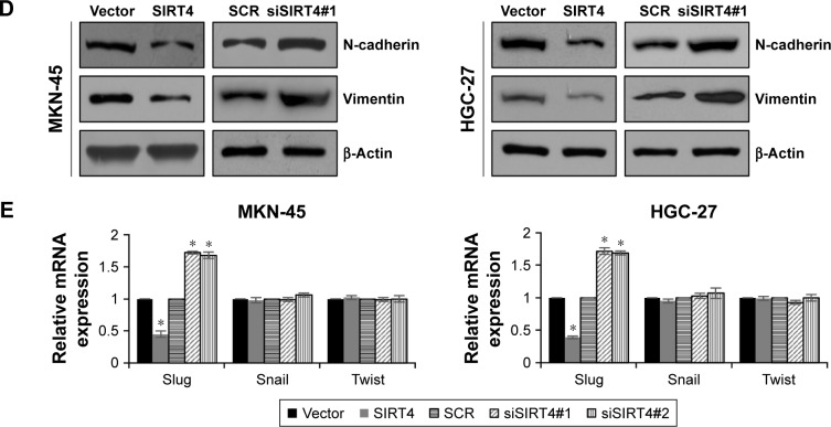 SIRT4 suppresses EMT through promoting E-cadherin expression. ( A ) SIRT4 was overexpressed or knocked down in MKN-45 or HGC-27 cells. After transfection for 48 h, the mRNA level of E-cadherin was detected using qRT-PCR. SIRT4 vs vector and siSIRT4 vs SCR, * p