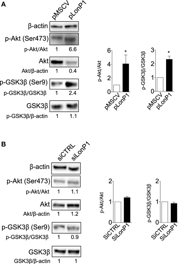 LonP1 modulates β-ctn by regulating Akt/GSK3β signaling. (A) Representative Western blot analysis and relative protein levels of phosphorylated Akt (Ser473), Akt, phosphorylated GSK-3β (Ser9), and GSK-3β in SW480 cells overexpressing LonP1. (B) Representative Western blot analysis and relative protein levels of phosphorylated Akt (Ser473), Akt, phosphorylated GSK-3β (Ser9), and GSK-3β in SW620 downregulating LonP1. β-actin was used as loading control. Densitometries are reported in histograms, and data are reported as mean ± SD ( n = 3). * P