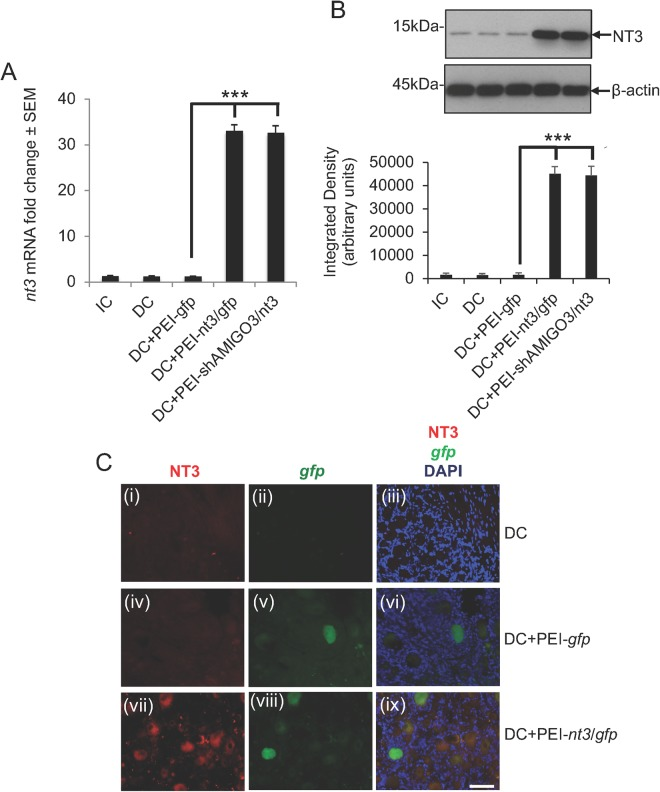 NT3 levels were overexpressed in DRGN after injection of in vivo-jet PEI transduced plasmids encoding shAMIGO3. ( A ) Low levels of nt3 mRNA were detected in IC, DC and DC + PEI- gfp groups, whilst significantly higher levels (P