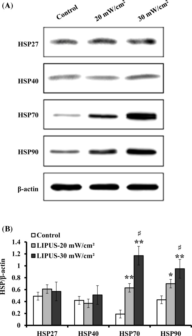 Analyses of HSP27, HSP40, HSP70, and HSP90 hASCs were treated with LIPUS at and 30 mW cm −2 for 30 min, and the temperature in the culture medium increased from 37 to 40°C during 30 min ultrasound exposure. Cell lysates were then extracted and subject to SDS/PAGE analysis. ( A ) Representative Western blot bands that exhibited the protein expression of HSP27, HSP40, HSP70, and HSP90. ( B ) The protein levels of HSP27, HSP40, HSP70, and HSP90 relative to β-actin that was used as a loading control. Data are presented as mean ± SD ( n =3); * P