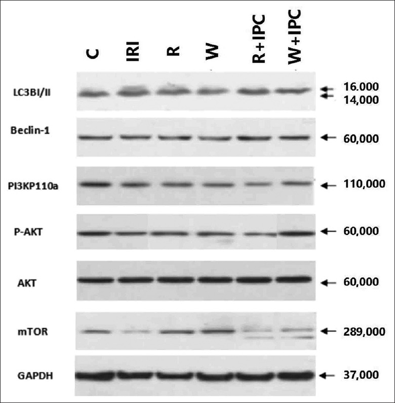 Western blotting for myocardial expressions of LC3-II, beclin-1, mTOR, PI3K, Akt, and P-Akt in different rat groups. C: Control group; IRI: Ischemia/reperfusion injury group; R: Rapamycin group; W: Wortmannin group; R + IPC: Rapamycin + IPC group; W + IPC: Wortmannin + IPC group. PI3K: Phosphoinositide 3 - kinase; mTOR: Mammalian target of rapamycin; GAPDH: Glyceraldehyde-3-phosphate dehydrogenase.