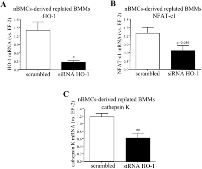 The effect of HO-1 silencing in osteoclasts precursors on the expression of OCLs markers. Bone marrow was isolated from HO-1 +/+ mice. nBMCs-derived BMMs were replated and transfected with siRNA against HO-1 or scrambled control. One day after transfection fresh medium containing RANKL (50 ng/ml) and M-CSF (30 ng/ml) was added for the next 3 days. Quantitative PCR (n = 5). Each bar represents the mean ± SEM. # p
