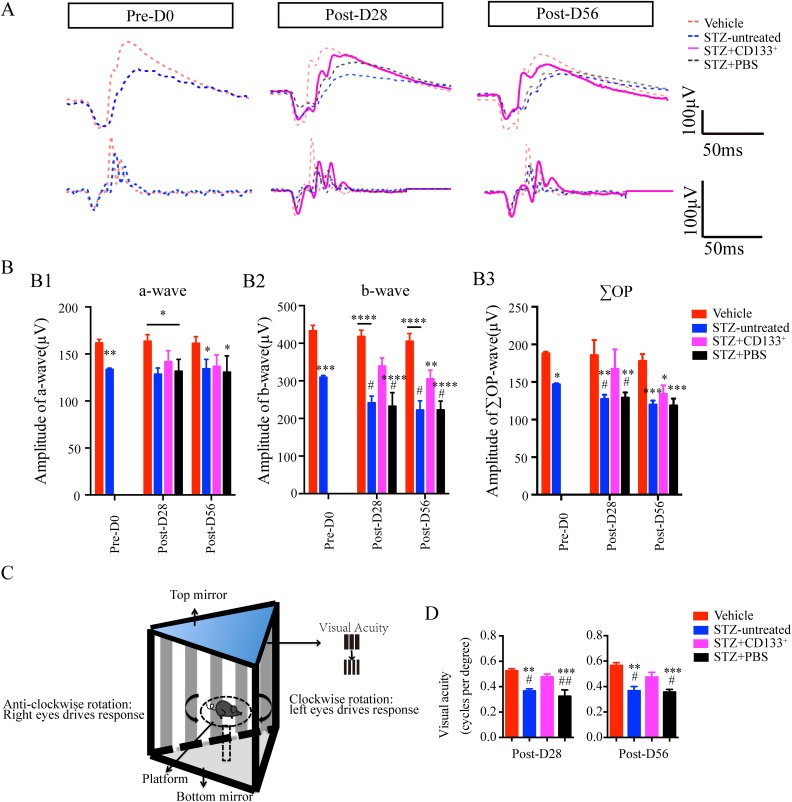 Intravitreal transplantation of CD133 + cells prevents early visual dysfunction in STZ-induced diabetic mice. (A, B) Transplantation of CD133 + cells improved scotopic ERG responses in diabetic mice especially the b-wave and the sum of oscillatory potentials (∑OPs) up to Post-D56 in diabetic retina. (A) Representative images of scotopic ERG on Pre-D0, Post-D28, and Post-D56 at flash intensity of 0.5 log (cd·s·m −2 ; 0dB). Upper: ERGs. Bottom: OPs. Red dashed line: vehicle; blue dashed line: STZ-untreated; magenta line: STZ+CD133 + ; black dashed line: STZ+PBS. (B) Corresponding statistic graphs displaying the amplitude of (B1) a-wave, (B2) b-wave, and (B3) ∑OPs. (C, D) Scotopic optomotor responses assessed by visual acuity via optomotor illustrated in (C) was improved in STZ+CD133 + group up to Post-D56, compared with the other three groups. (D) Measurement of visual acuity from four groups plotted as a histogram. Number of vehicle (red) versus STZ-untreated (blue) versus STZ+CD133 + (magenta)/PBS (black) eyes: Pre-P0: n =10 versus 10, Post-D28: n =2 versus 12 versus 12, Post-D56: n =10 versus 10 versus 10. Values expressed as mean ± SEM. Statistical analysis: One-way analysis of variance followed by Tukey's multiple comparisons test for (B) and (D). Compared with vehicle group: * P