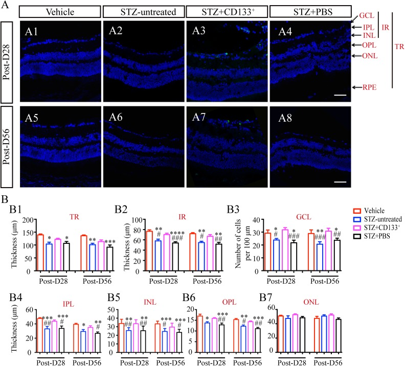 Transplanted CD133 + cells suppress inner retinal thinning in STZ-induced diabetic mice with early DR. (A) Representative images of retina from vehicle, STZ-untreated, STZ+CD133 + , and STZ+PBS group and (B) statistical histograms of thickness of TR, IR and individual retina layers, and number of cells in GCL per 100 μm. CD133 + cells prevented thinning of layers in diabetic mice, especially IR, but not ONL. Values expressed as mean ± SEM (B) ( n =4 eyes per group). Statistical analysis: One-way analysis of variance followed by Tukey's multiple comparisons test for (B). Compared with vehicle group: * P