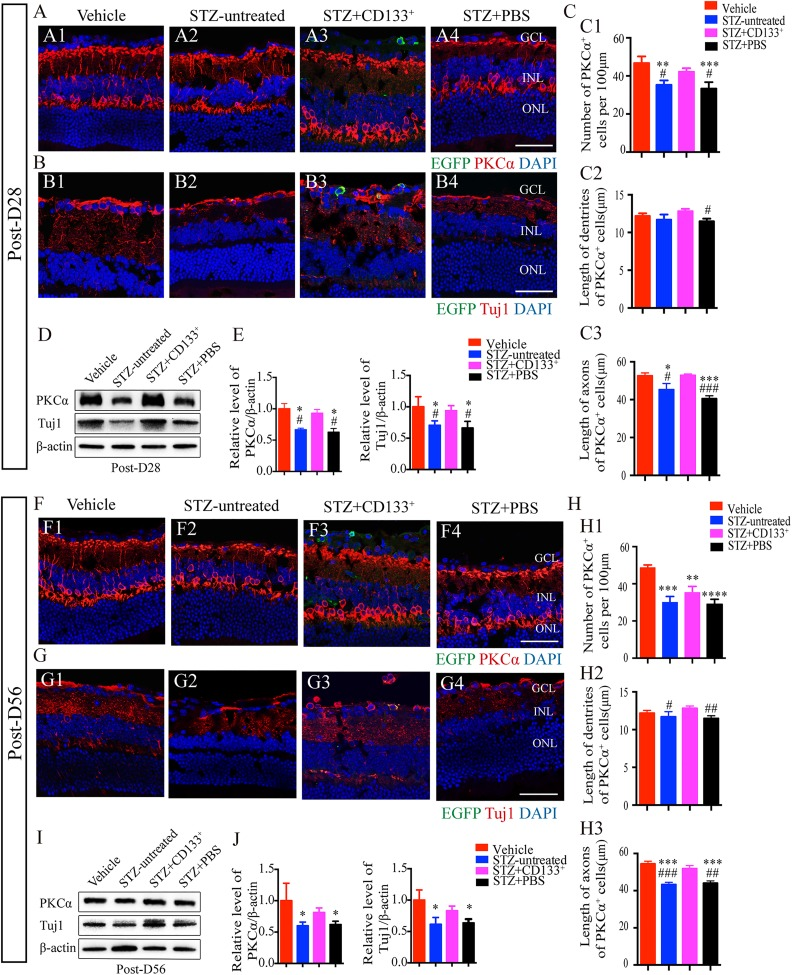 Transplanted CD133 + cells delay neuronal degeneration in IR in STZ-induced diabetic mice. (A, B, F, G) Representative images showing the rescue of RBCs stained with protein kinase C alpha (PKCα) (red), and RGCs with Tuj1 (red) on Post-D28 and Post-D56 in STZ+CD133 + group mice, respectively (A3, B3, F3, G3), compared with vehicle (A1, B1, F1, G1), STZ-untreated (A2, B2, F2, G2), and STZ+PBS group (A4, B4, F4, G4). Images were taken at the same location among retinas from four groups to make reliable comparisons. (C, H) Histogram showing the number (per 100 μm), dendrite length, and axon length of PKCα + cells in retina from four groups. Related Western blotting is shown in (D, I) and statistical optical density ratio analysis compared with vehicle group (the average value set as 1) in (E, J). β-actin was used as an internal control. Images were representative for at least five images per eye ( n =4 eyes per group). Values expressed as mean ± SEM ( n =3 eyes per group). DAPI stained the nuclei. Statistical analysis: One-way analysis of variance followed by Tukey's multiple comparisons test for (E, J, C, H). Compared with vehicle group: * P