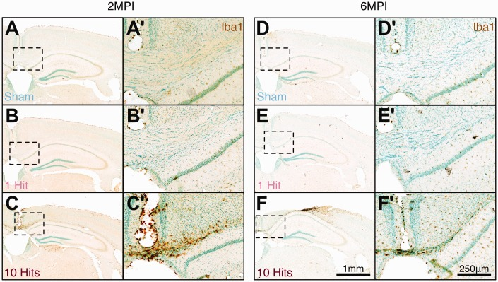 rmCHI induces chronic microglial inflammation at 2 MPI and 6 MPI in white matter tracts. (a, d) Baseline levels of Iba1 immunoreactivity in sham C57Bl/6J mice. 1-hit mice have similar Iba1 immunoreactivity at 2 MPI (b, b') and 6 MPI (e, e') to sham mice at 2 MPI (a, a') and at (d, d') 6 MPI. (c, c') Mice receiving 10 hits have prominent Iba1 immunoreactivity at 2 MPI and (f, f') at 6 MPI, particularly in the corpus callosum. Low magnification scale bar = 1 mm; high magnification scale bar = 250 μm. rmCHI = repeated mild closed head injury; MPI = months postinjury.