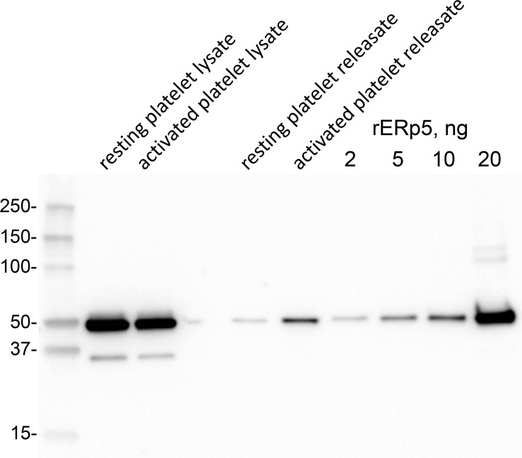 ERp5 level in human platelets and platelet releasate. Washed human platelets were prepared from a healthy donor. One ml of platelet suspension (363,000 per µL) was untreated or activated with 20 µM ADP for 2 min. Platelet releasate was collected by centrifugation for 15 min at 1000 g. The platelet pellet was lysed with 50 µL 2% NP40, 30 mM Hepes, 150 mM NaCl, 2 mM EDTA, pH 7.4 buffer containing proteinase inhibitor cocktail and clarified by centrifugation at 10,000 g for 20 min at 4°C. One µL of platelet lysate and 10 µL of releasate were resolved on reducing SDS-PAGE and the ERp5 immunoblotted with 1 µg/mL rabbit anti-ERp5 polyclonal antibody. Platelet ERp5 levels were calculated by reference to a standard curve of recombinant ERp5 concentrations. Densitometry of the chemiluminescent bands was performed by ImageQuant TL software (Biorad). Molecular size markers are shown at left.