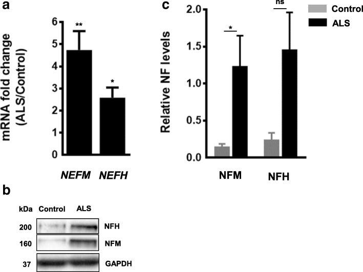 NEFM and NEFH transcript and protein levels are increased in spinal cord of ALS patients. ( a ) Real-time PCR using TaqMan and ( b ) Western blots were performed using ventral lumbar spinal cord samples of controls and ALS patients. ( c ) Quantification of Western blots in ( b ). Protein levels were normalized to GAPDH. Data was expressed as the mean ± SEM (Student t -test: **** p