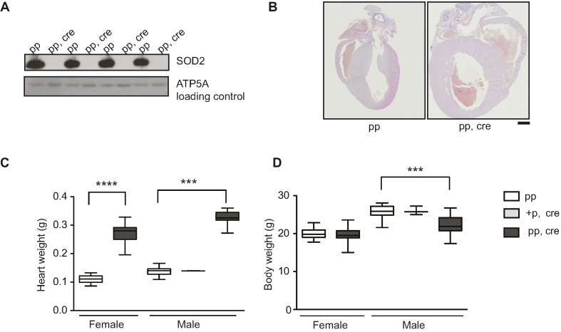 Heart Sod2 knockout mice display severe dilated cardiomyopathy. ( A ) Western blot analysis of SOD2 protein levels from purified mitochondria of control (pp) and Sod2 loxP × Ckmm cre mice (pp, cre) (9–11 week old). ATP5A was used as a loading control. ( B ) Vertical sections through the midpoint of paraffin embedded hearts stained with hematoxylin and eosin staining. Control (pp, 11-week old) and Sod2 loxP × Ckmm cre (pp, cre, 10-week old). Scale bar represents 1 mm. ( C ) Heart weight of control (pp), heterozygous Sod2 loxP x Ckmm cre and homozygous Sod2 loxP x Ckmm cre (pp, cre) mice. White box indicates control mice (pp female n = 22, male n = 35, 9–11 week old), light gray box indicates heterozygous Sod2 loxP x Ckmm cre mice (male +p, cre, n = 2, 9-week old) and dark gray box indicates homozygous Sod2 loxP x Ckmm cre mice (pp, cre, female n = 28, male n = 15, 9–10 week old). D. Body weight of control (pp), heterozygous Sod2 loxP x Ckmm cre and homozygous Sod2 loxP x Ckmm cre (pp, cre) mice. White box indicates control mice (pp female n = 26, male n = 36, 9–11 week old), light gray box indicates heterozygous Sod2 loxP x Ckmm cre mice (male +p, cre, n = 3, 9-week old) and dark gray box indicates homozygous Sod2 loxP x Ckmm cre mice (pp, cre, female n = 30, male n = 19, 9–10 week old). Whiskers represent min and max values, horizontal lines medians; **** P