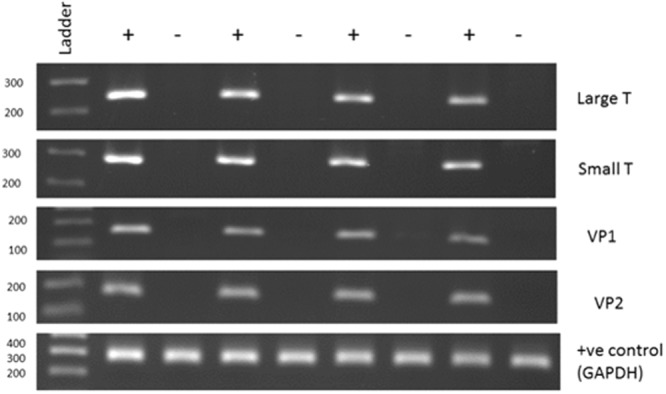 End-point PCR confirmation of polyomavirus qPCR results. The figure shows an agarose gel of PCR products generated using BKV or human GAPDH primers and DNA extracted from tumours. + indicates BKV positive tumours (C t s of 17.6, 22.5, 25.3 and 26.2 respectively, left to right) and − indicates BKV negative (C t > 35). The numbers on the left indicate the ladder sizes (bp). The predicted sizes for the 5 amplicons are 250, 281, 161, 164 and 269 bp respectively. The 5 PCRs were run separately (in parallel) and analysed on separate gels.